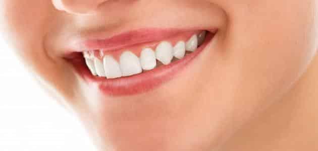 سؤال وجواب عن الأسنان
