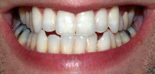موضوع تعبير عن تسوس الأسنان للصف الخامس